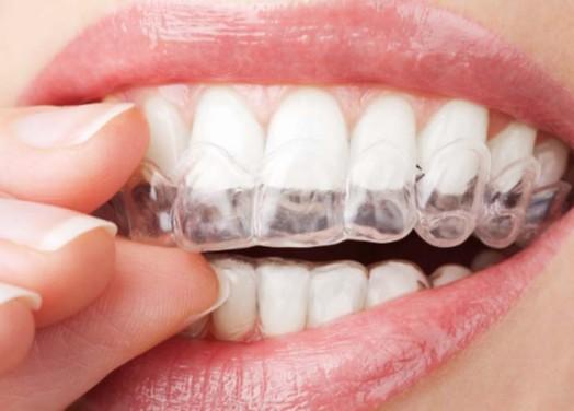 Şeffaf Diş Teli Tedavisi